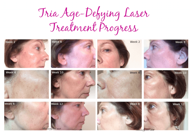 Tria Age Defying Laser Treatment Progress