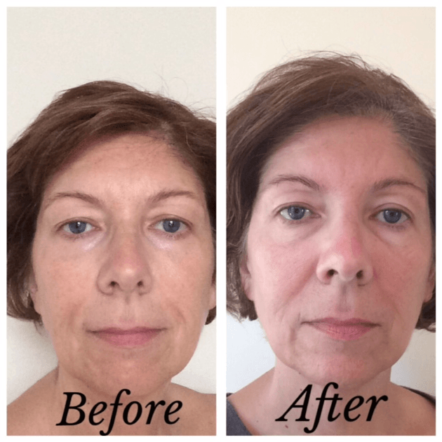 Tria Anti Aging Laser Before And After Pictures | home