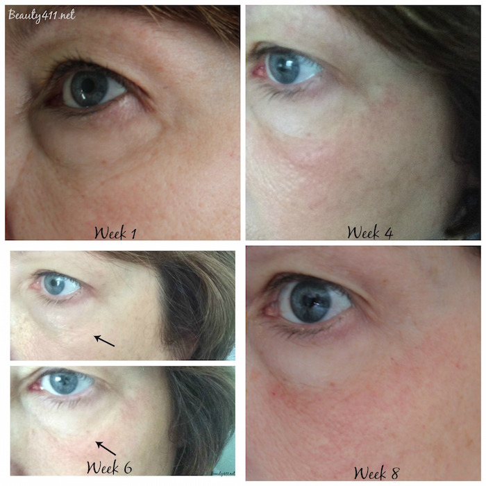 Beauty411-TRIA treatment progression