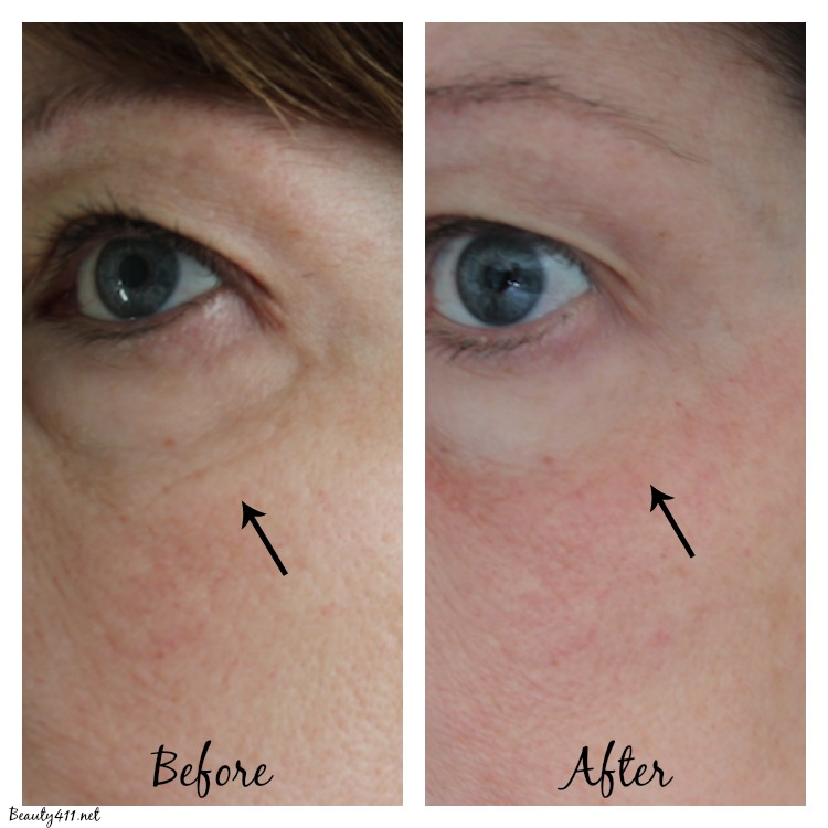 Before-After Tria Eye Wrinkle Removing Laser